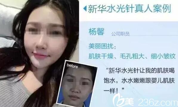 桂林新华注射水光针案例