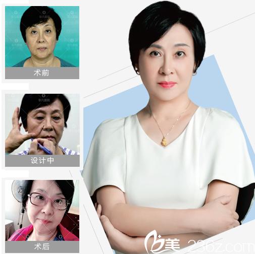 深圳非凡医疗美容整形医院玫瑰线雕全脸提升案例图