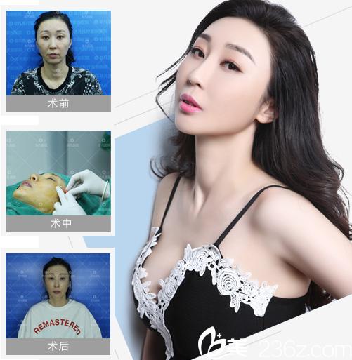 深圳非凡面部线雕全脸提升案例图