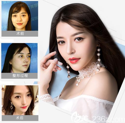深圳非凡医疗美容整形医院鼻综合隆鼻案例图
