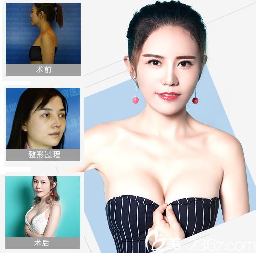 深圳非凡假体隆胸案例对比图