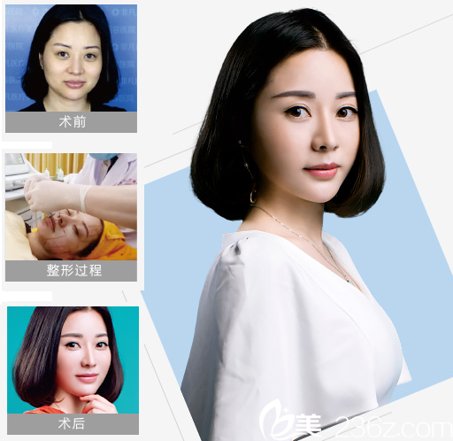 深圳非凡医疗美容整形医院热拉提和拉皮手术案例图
