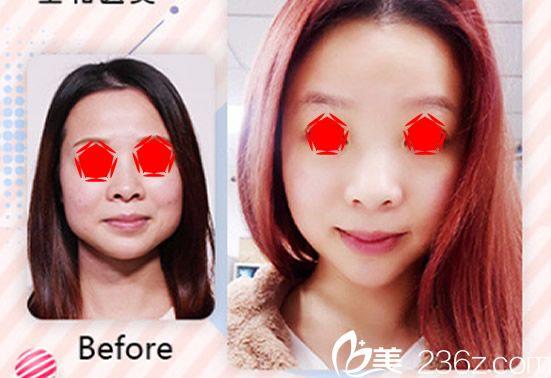 合肥星和医疗美容医院瘦脸除皱瘦脸案例前后对比照片
