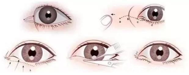 长春秀尔开内眼角手术