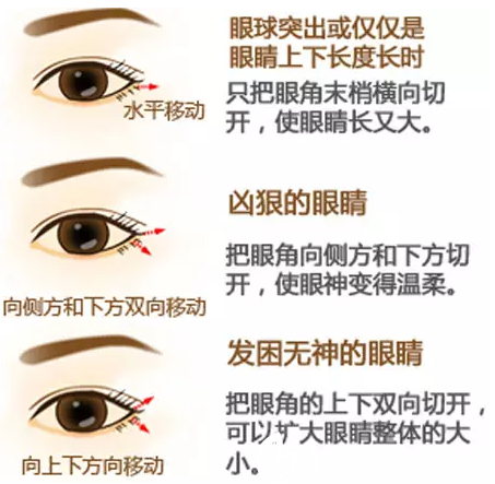 开眼角手术可以改善眼睛类型