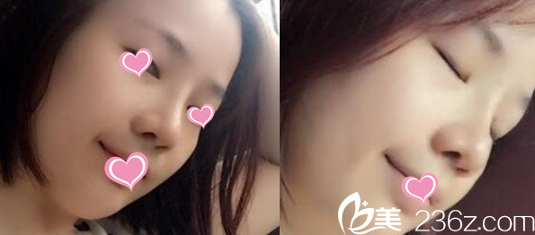 通辽赛美瑞整形刘家贺医生做鼻子怎么样 看我综合隆鼻案例和效果对比图