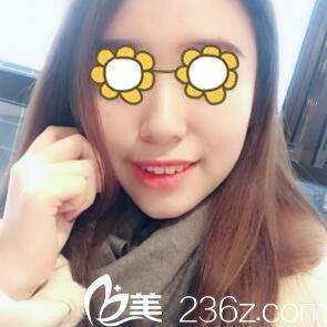 找韩国美贪整形医院金光泰做下颌角术后两个月效果分享 大方脸变小V脸