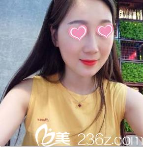 李奇军生长因子取出怎么样?来看北京知音真人案例第85天效果