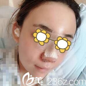 鼻综合术后第3天样子