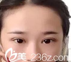想了解大同割双眼皮哪里好?可以参考本人在红太阳做的韩式三点定位双眼皮恢复过程图