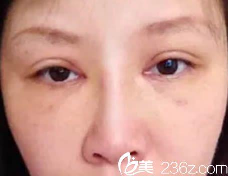本人6月10日去厦门脸博士整形医院让曾辉武做了双眼皮和隆鼻,大家评价下效果如何?