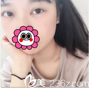 北京俯大医疗美容门诊部赵翊利术后照片1