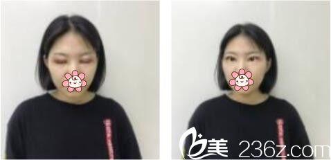 上海康奥医疗美容医院钱麟双眼皮真人案例术后第三天