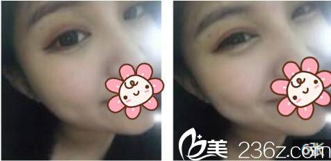 上海康奥医疗美容医院钱麟术后照片1