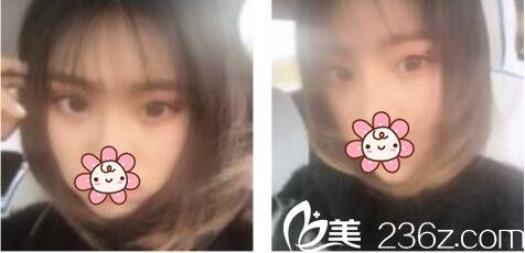 上海康奥医疗美容医院钱麟双眼皮真人案例术后两个月