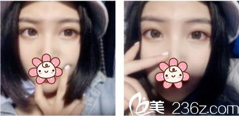 上海康奥医疗美容医院钱麟双眼皮真人案例术后三个月