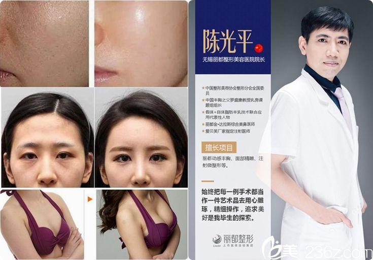 陈光平医生隆胸案例