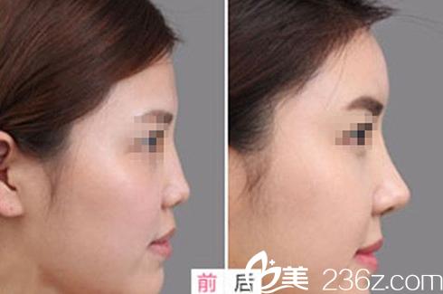 太原华美刘安堂鼻综合术前术后效果对比