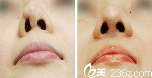 刘安堂教授隆鼻失败修复术前术后效果对比图