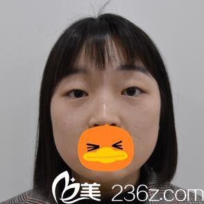 长沙禾丽医疗美容医院徐庶术前照片1