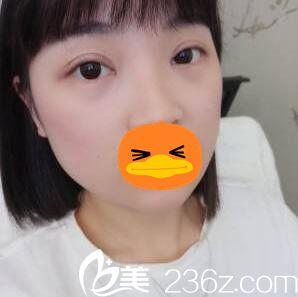 长沙禾丽医疗美容医院徐庶术后照片1