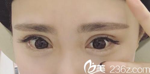 安徽合肥申诚整形埋线双眼皮术后第7天照片