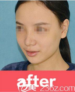 忍不住分享我在梧州华美找胡凯做鼻综合手术的全过程 现在鼻子又挺又自然