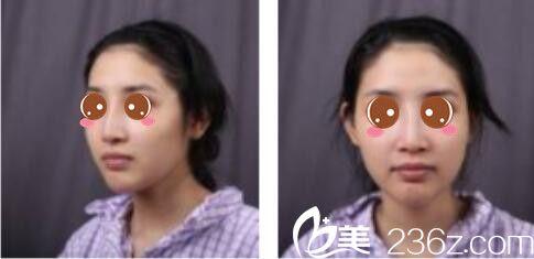 上海康奥医疗美容医院钱麟术前照片1
