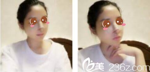 上海康奥医疗美容医院钱麟鼻综合真人案例术后第三天