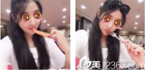 上海康奥医疗美容医院钱麟鼻综合真人案例术后一个月