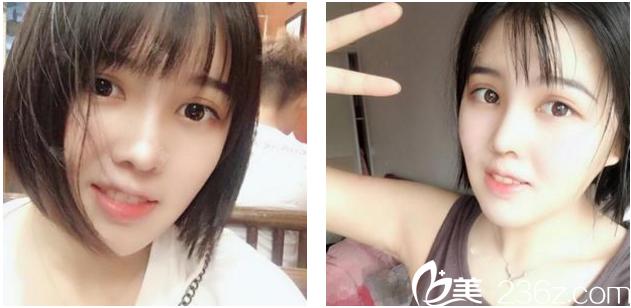 趁着暑假去深圳雅唯整形医院找王权院长做了面部吸脂和隆鼻效果真是立竿见影