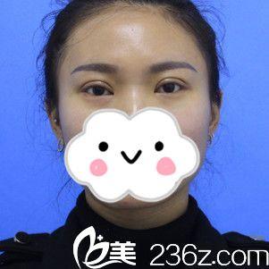 赵亚均医生双眼皮手术案例分享