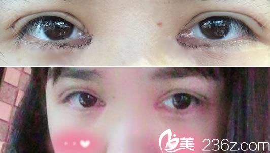 做完开内眼角和双眼皮术后7天