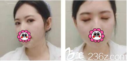 三个月之前去上海翡立思找王维做了双眼皮,现在眼睛看上去灵动自然