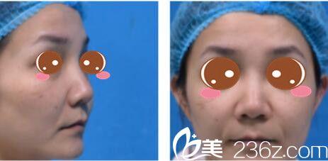 上海翡立思鼻子做的怎么样?看我找王艳做的鼻综合三个月的恢复日志
