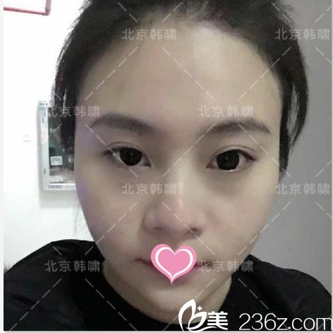 朋友在北京韩啸医院做韩式双眼皮效果好推荐我改善单侧上睑下垂问题