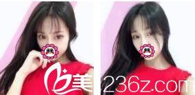 上海宏康割眼皮好不好?看汤学标为我做的切开双眼皮术后三个月变得越来越自然