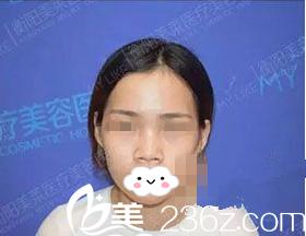 衡阳美莱医疗美容医院邓颖术前照片1