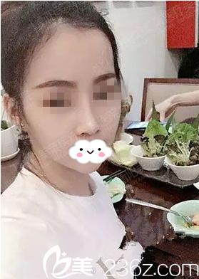 衡阳美莱医疗美容医院邓颖术后照片1