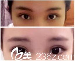 衡阳美莱双眼皮怎么样 分享邓颖主任给我做的小清新双眼皮一个月后自然无痕的美美效果