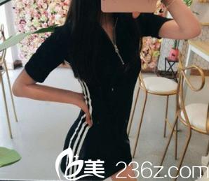 在重庆当代整形美容医院陈成那儿做完腰腹吸脂,腰细了整整12公分。