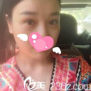 看我找长沙真爱整形医院刘芝做的全切双眼皮术后1个月恢复效果 美美哒!