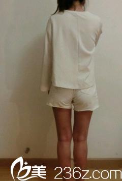 新疆伊丽莎白整形张宝誉把我在健身房练了四个月都没瘦的大腿吸脂弄瘦了!