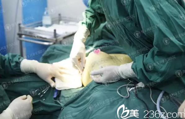 内窥镜假体隆胸手术过程中
