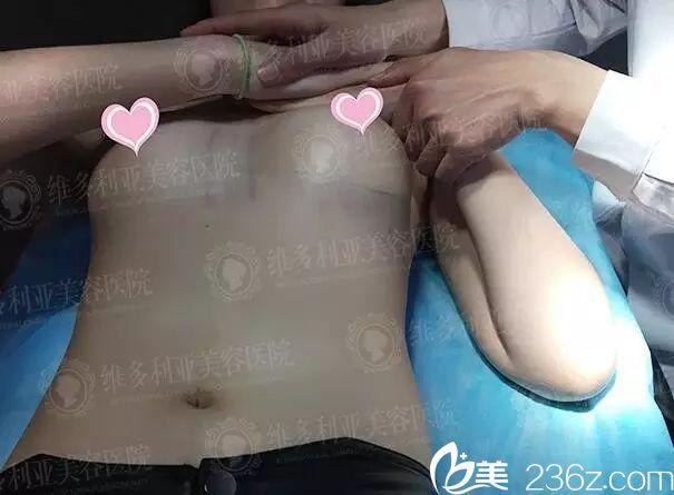 南京维多利亚隆胸哪个医生好?纠结刘光伟和李志生后做了美国艾尔建娜琦丽毛面水滴假体来看效果怎么样