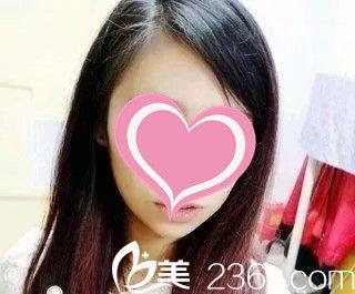 南昌哪家整形医院注射瘦脸针效果好?看看我在江西广济打瘦脸针一个月后的效果