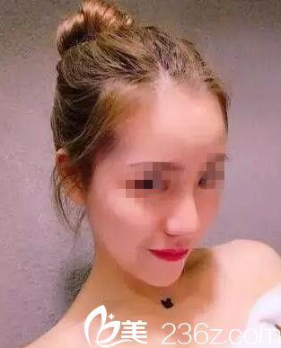 长春市哪家医院好?看我在长春京典做假体隆鼻术后3个月拥有迷人翘鼻