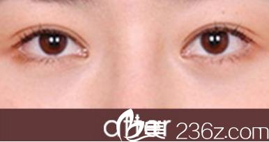 北海哪家医院做双眼皮手术好?分享一下我在北海李鑫做韩式三点双眼皮的效果