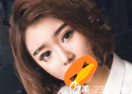 看了甘泉涌割双眼皮案例,才去芜湖壹加壹整形做了硅胶假体鼻综合隆鼻手术