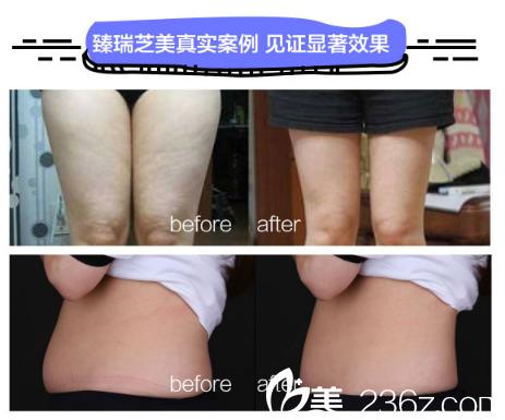 深圳臻瑞芝美医疗美容医院酷塑冷冻溶脂案例图